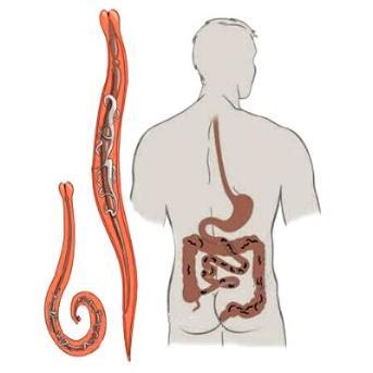 gastric cancer vs gist
